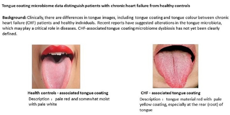 Healthy controls vs CHF tongues
