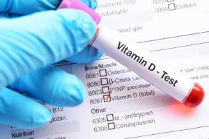 The Death Predicting Test - Vitamin D