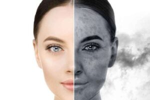 Anti-pollution Beauty Products Improves Skin Health